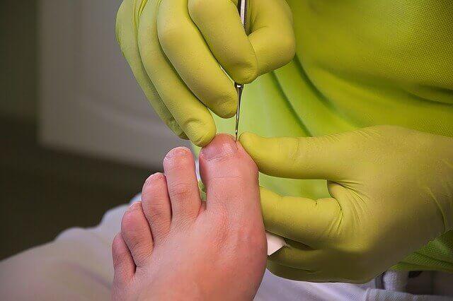 Medizinische Fußpflege auf Rezept