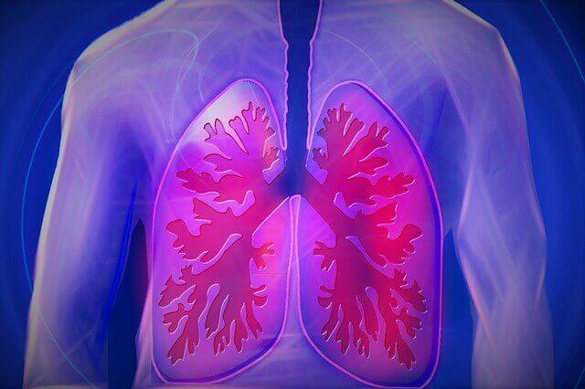 COPD Lungenkrankheit